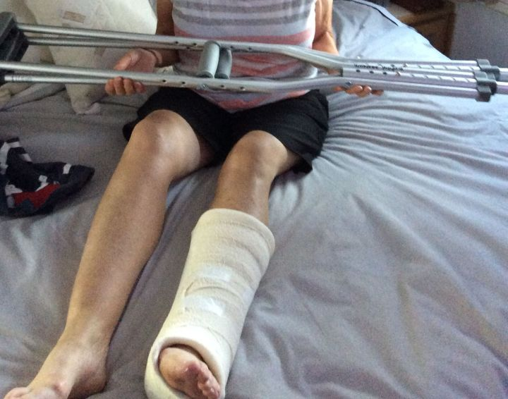 Crutches and Plaster